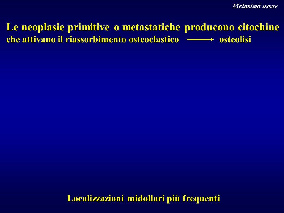 Le neoplasie primitive o metastatiche producono citochine