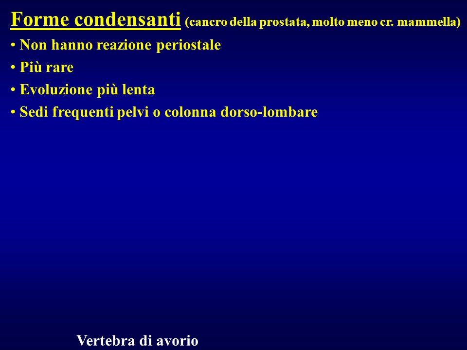 Forme condensanti (cancro della prostata, molto meno cr. mammella)
