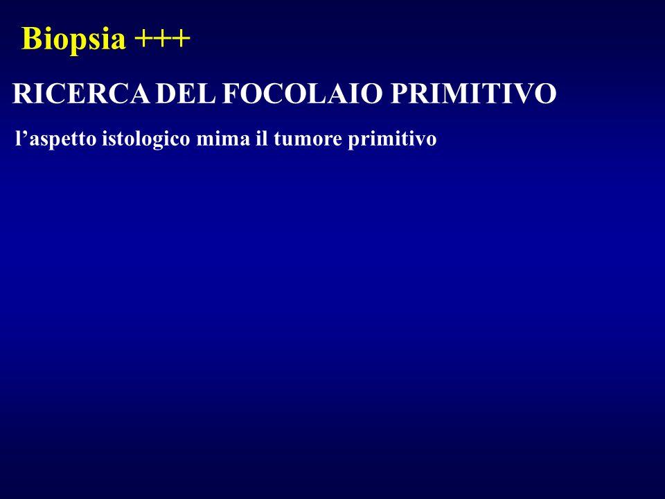 Biopsia +++ RICERCA DEL FOCOLAIO PRIMITIVO