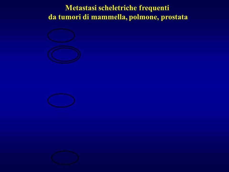 Metastasi scheletriche frequenti