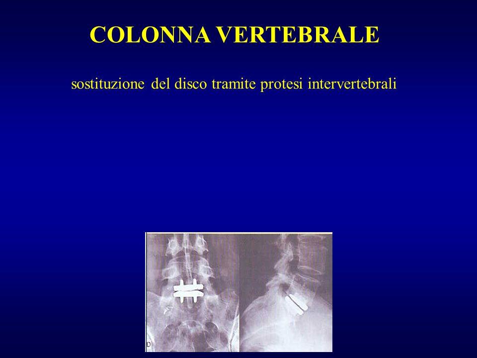 COLONNA VERTEBRALE sostituzione del disco tramite protesi intervertebrali