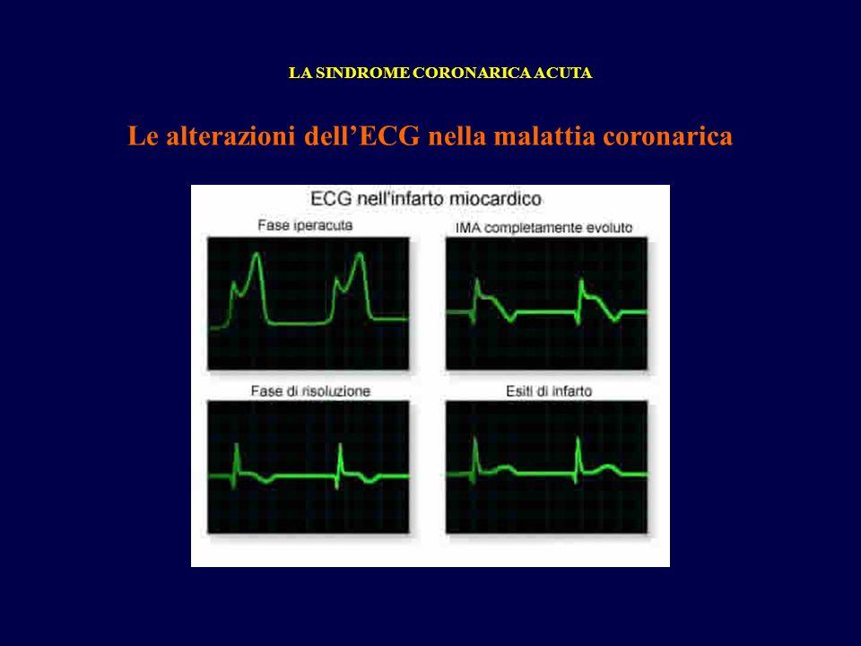 Le alterazioni dell'ECG nella malattia coronarica