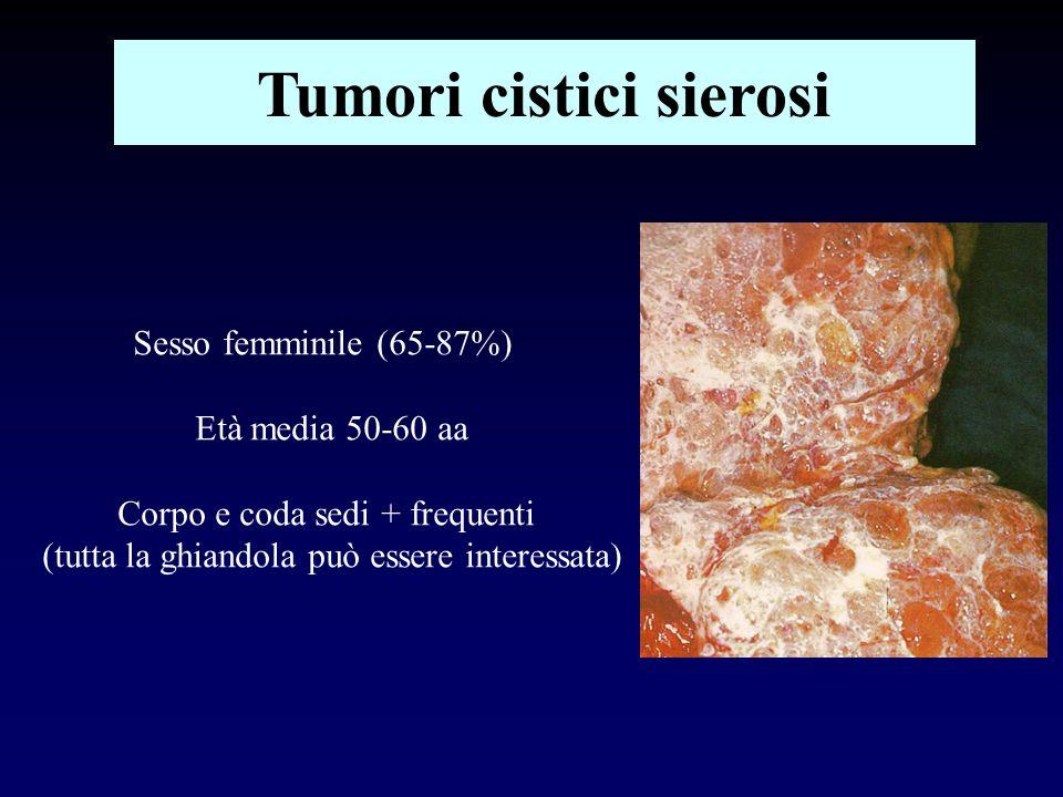 Tumori cistici sierosi