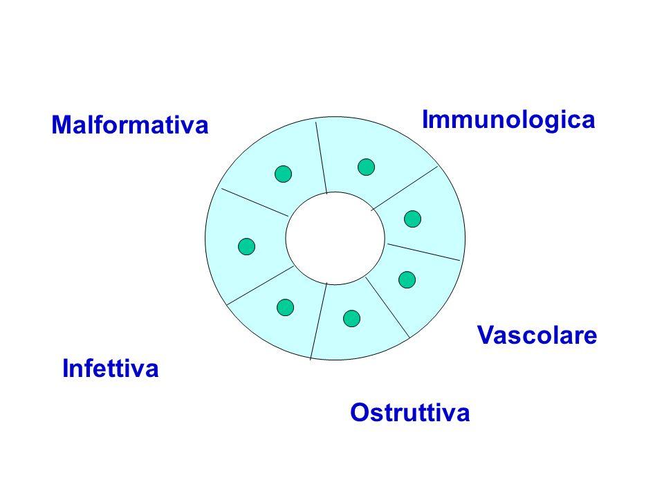 Immunologica Malformativa Vascolare Infettiva Ostruttiva