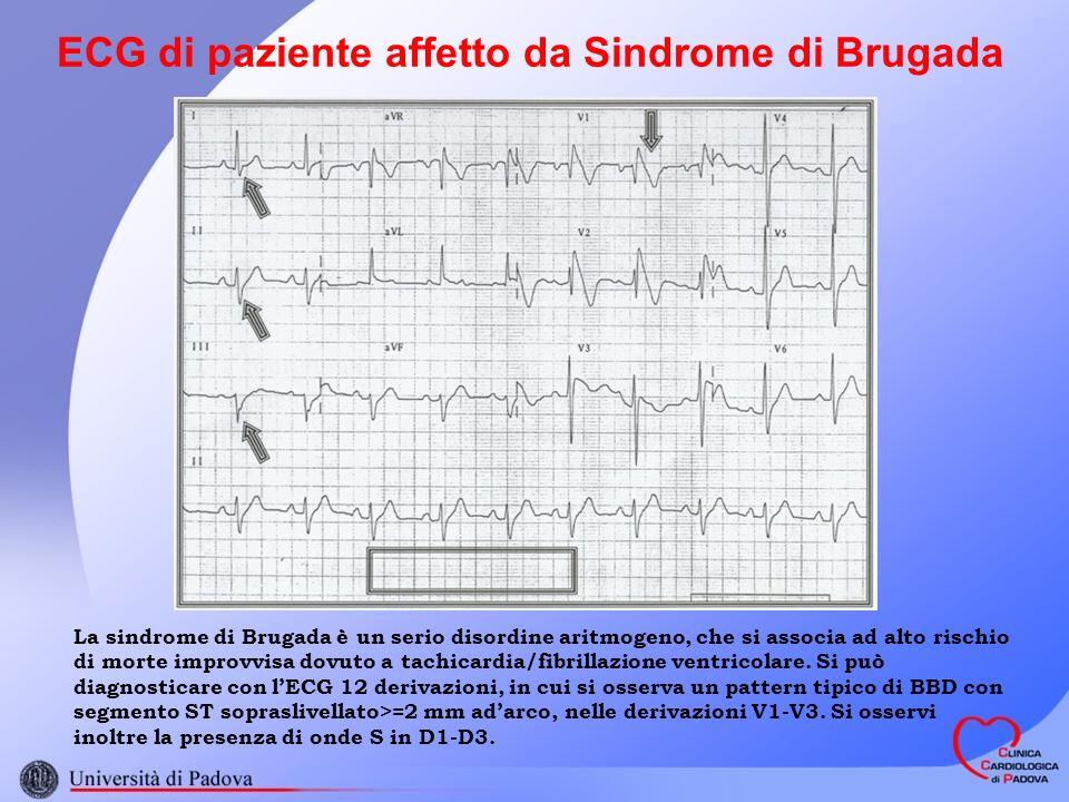 ECG di paziente affetto da Sindrome di Brugada