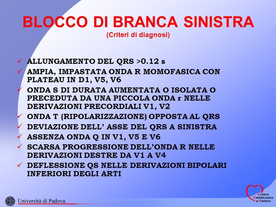 BLOCCO DI BRANCA SINISTRA (Criteri di diagnosi)
