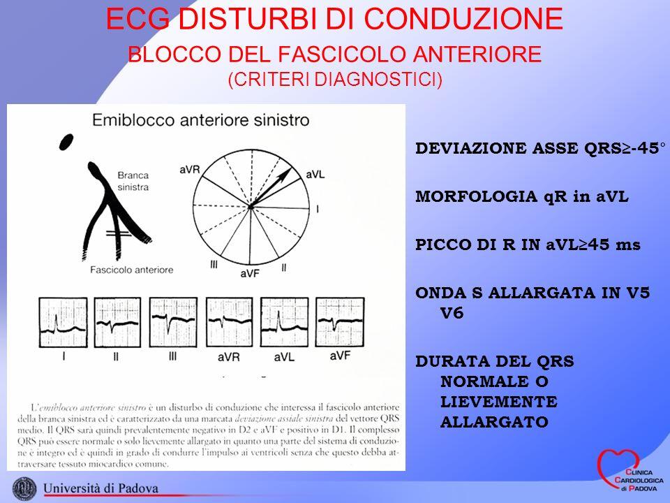 ECG DISTURBI DI CONDUZIONE BLOCCO DEL FASCICOLO ANTERIORE (CRITERI DIAGNOSTICI)