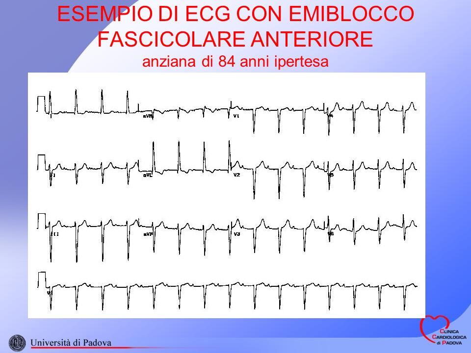 ESEMPIO DI ECG CON EMIBLOCCO FASCICOLARE ANTERIORE anziana di 84 anni ipertesa