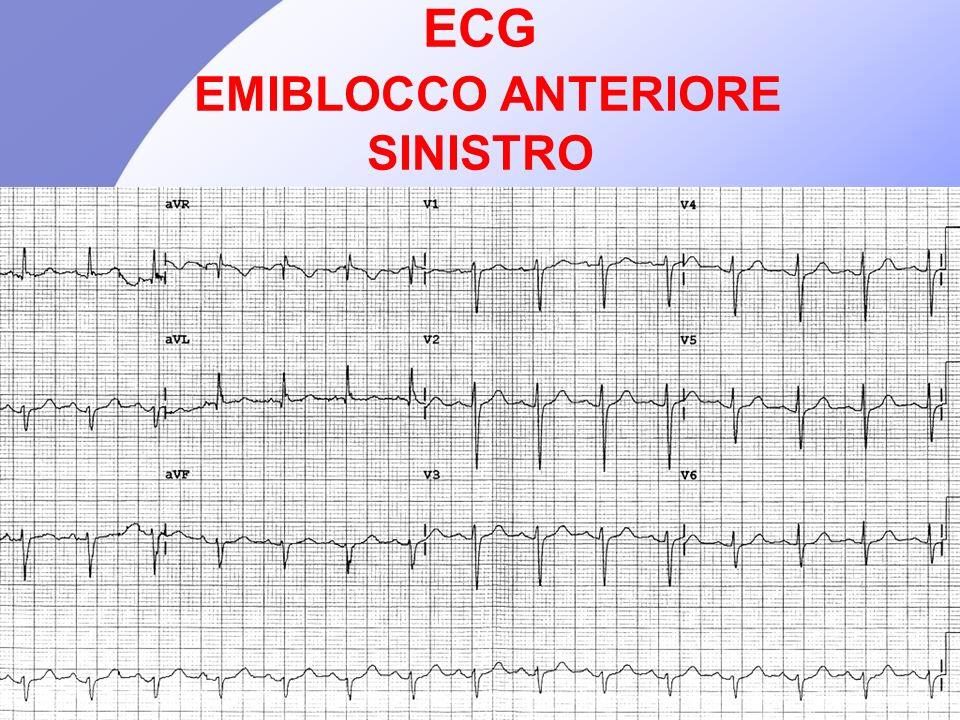ECG EMIBLOCCO ANTERIORE SINISTRO