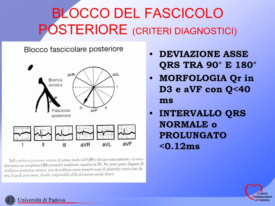 BLOCCO DEL FASCICOLO POSTERIORE (CRITERI DIAGNOSTICI)