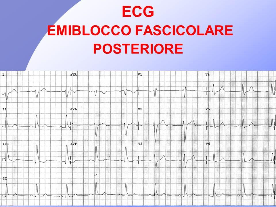 ECG EMIBLOCCO FASCICOLARE POSTERIORE