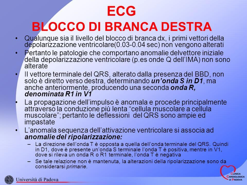 ECG BLOCCO DI BRANCA DESTRA