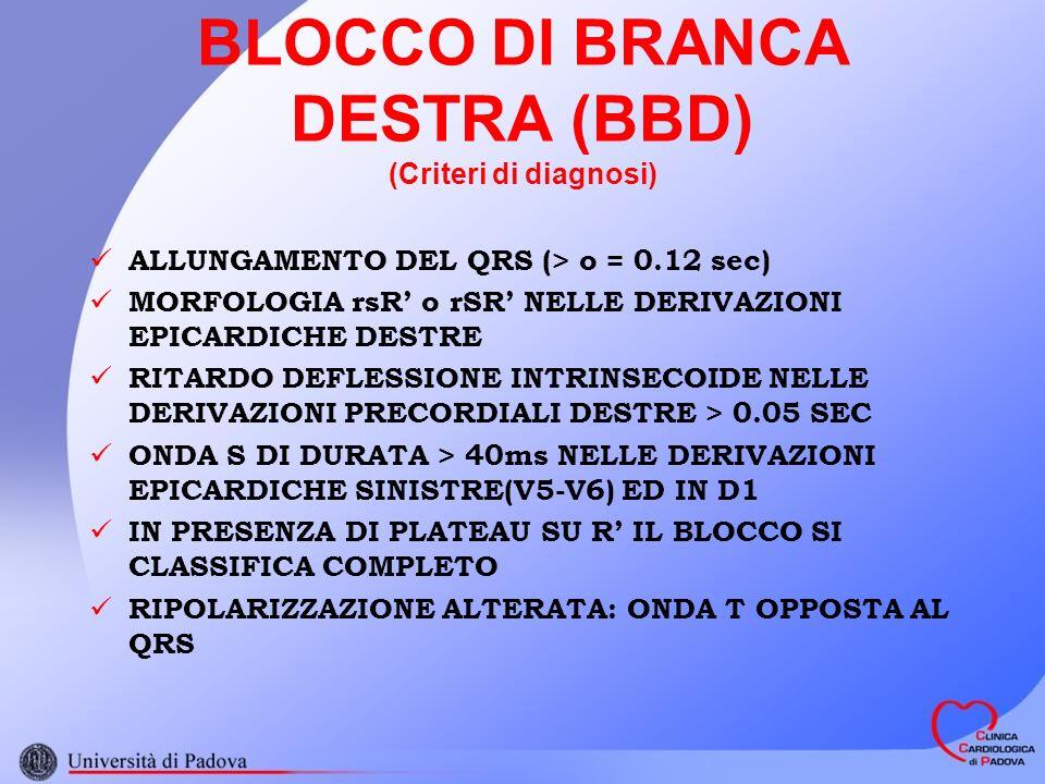 BLOCCO DI BRANCA DESTRA (BBD) (Criteri di diagnosi)