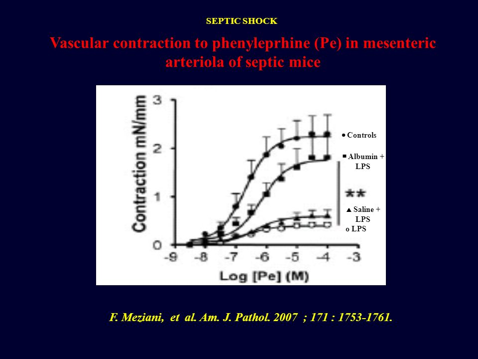 F. Meziani, et al. Am. J. Pathol. 2007 ; 171 : 1753-1761.