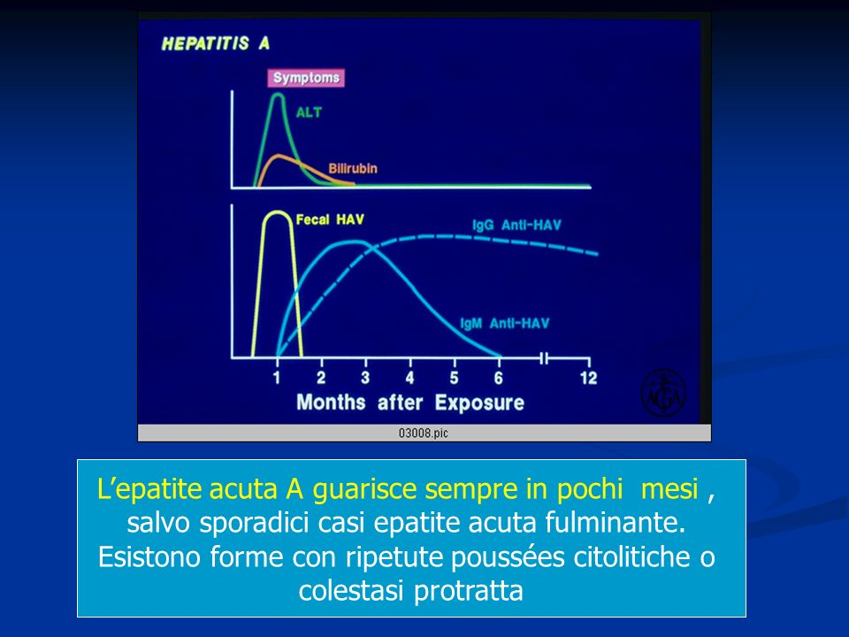 L'epatite acuta A guarisce sempre in pochi mesi ,