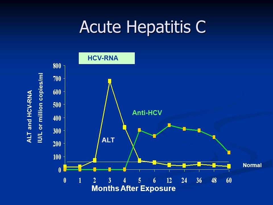 Acute Hepatitis C Months After Exposure HCV-RNA Anti-HCV ALT