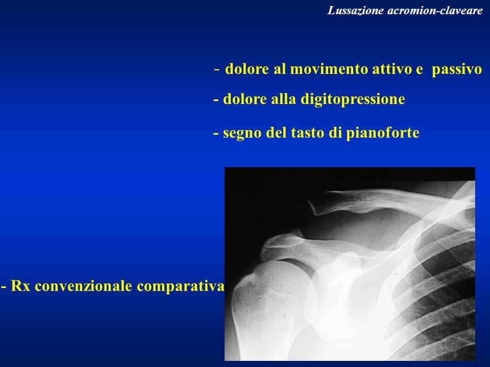 - dolore al movimento attivo e passivo