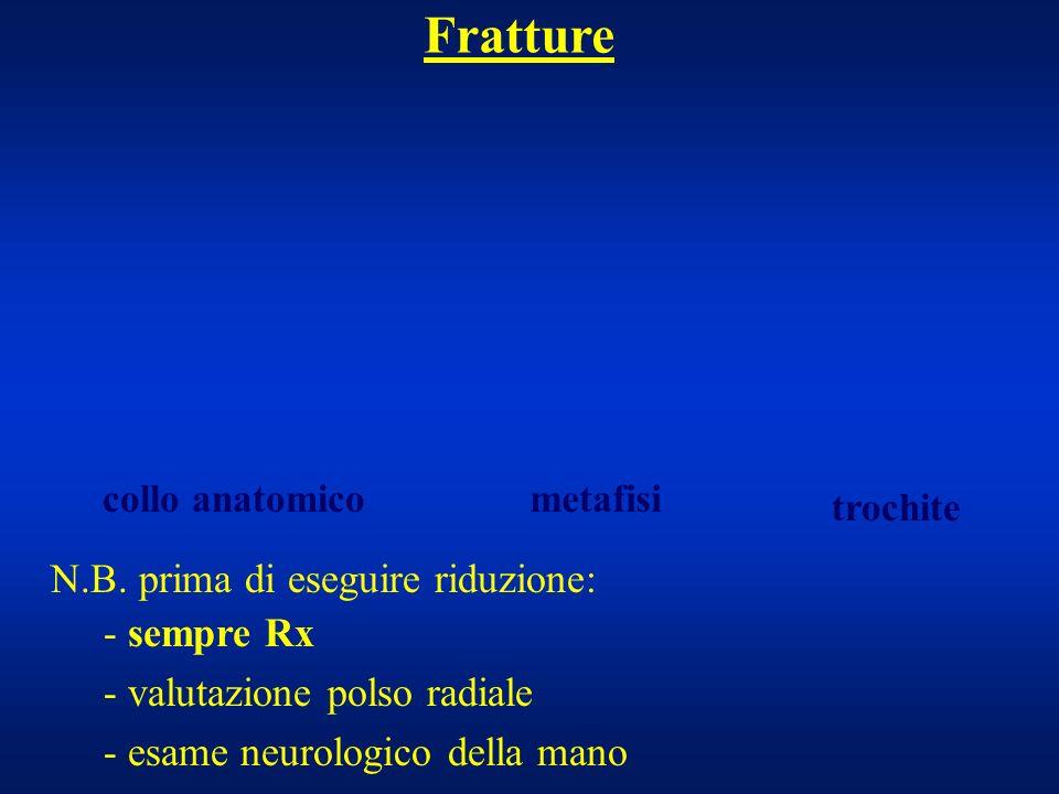 Fratture - sempre Rx - valutazione polso radiale