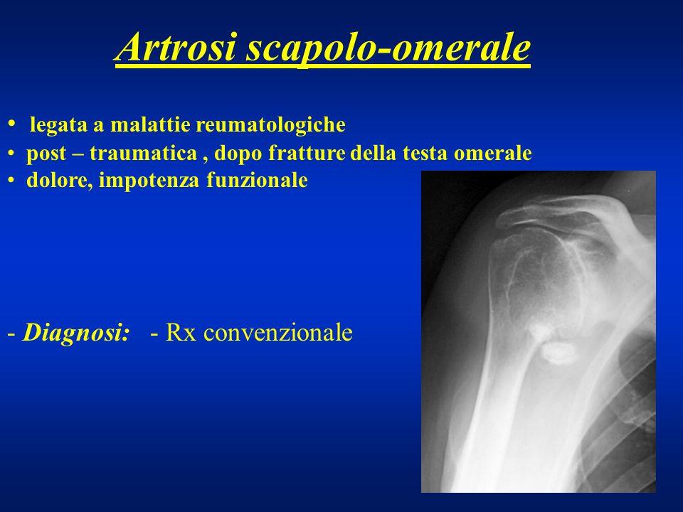 Artrosi scapolo-omerale
