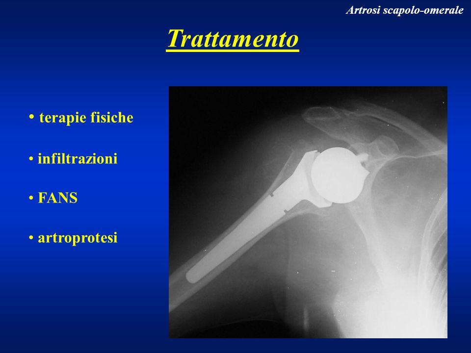 Trattamento terapie fisiche infiltrazioni FANS artroprotesi