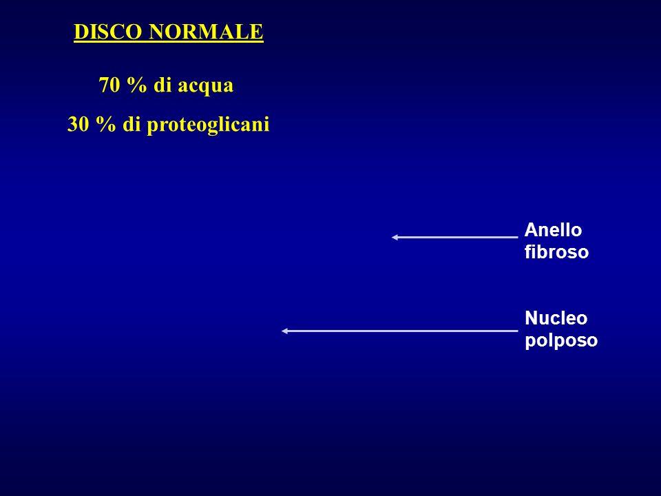 DISCO NORMALE 70 % di acqua 30 % di proteoglicani