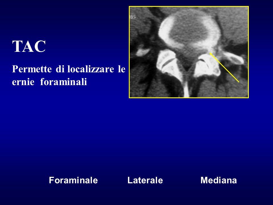 TAC Permette di localizzare le ernie foraminali