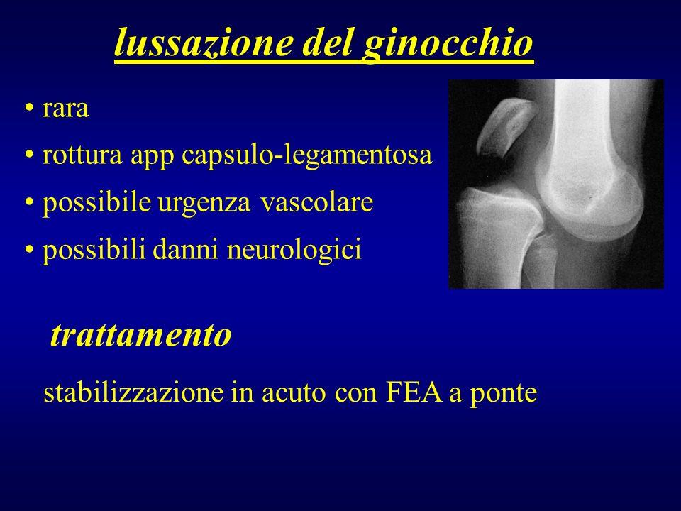 lussazione del ginocchio