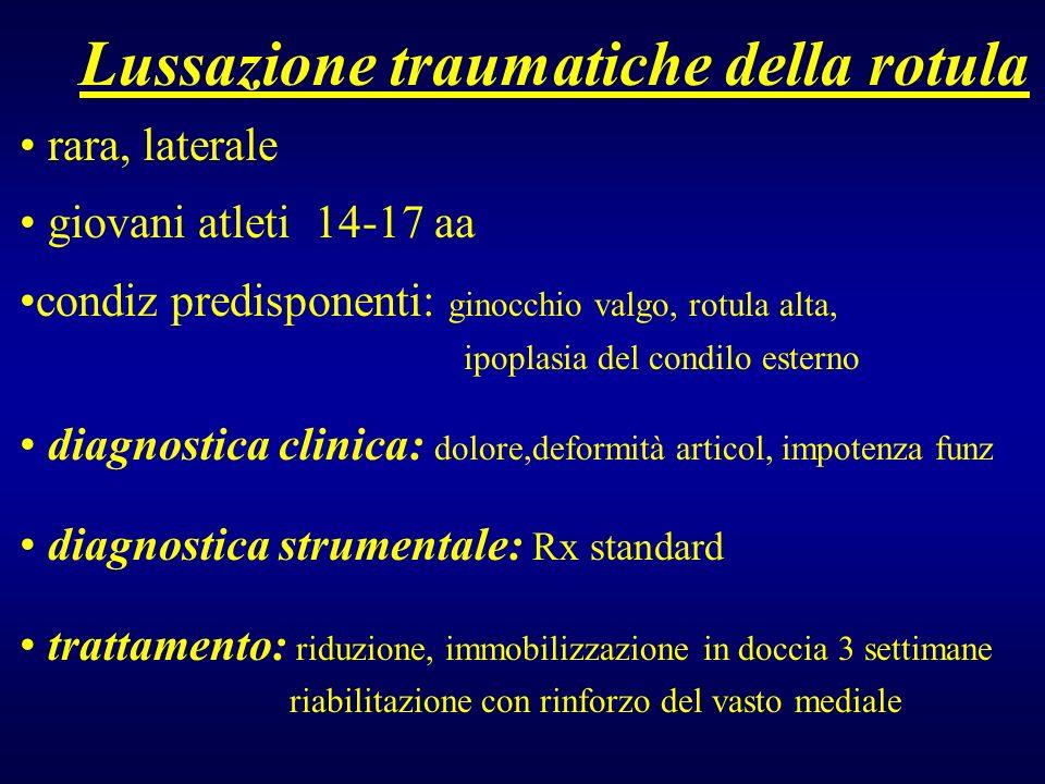 Lussazione traumatiche della rotula