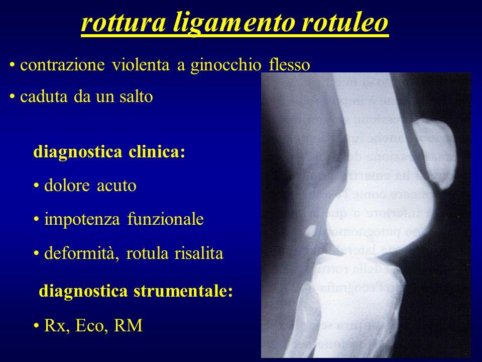 rottura ligamento rotuleo