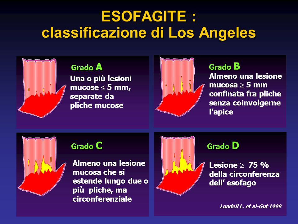 ESOFAGITE : classificazione di Los Angeles
