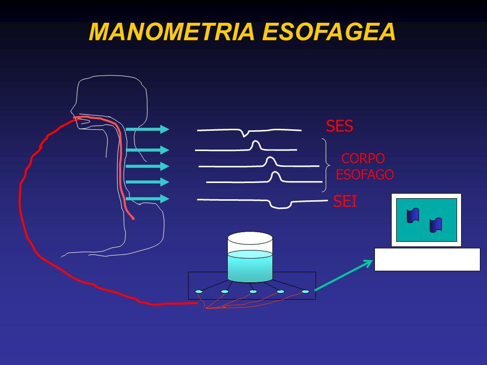 MANOMETRIA ESOFAGEA SES CORPO ESOFAGO SEI