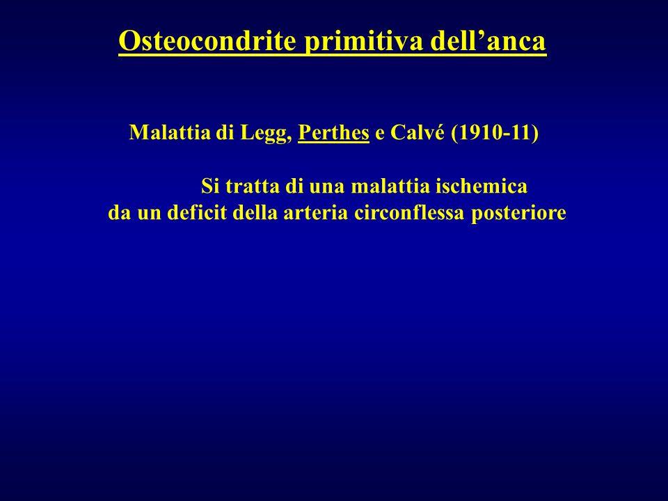Osteocondrite primitiva dell'anca