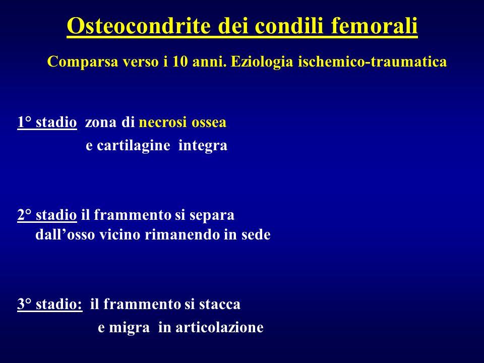 Osteocondrite dei condili femorali