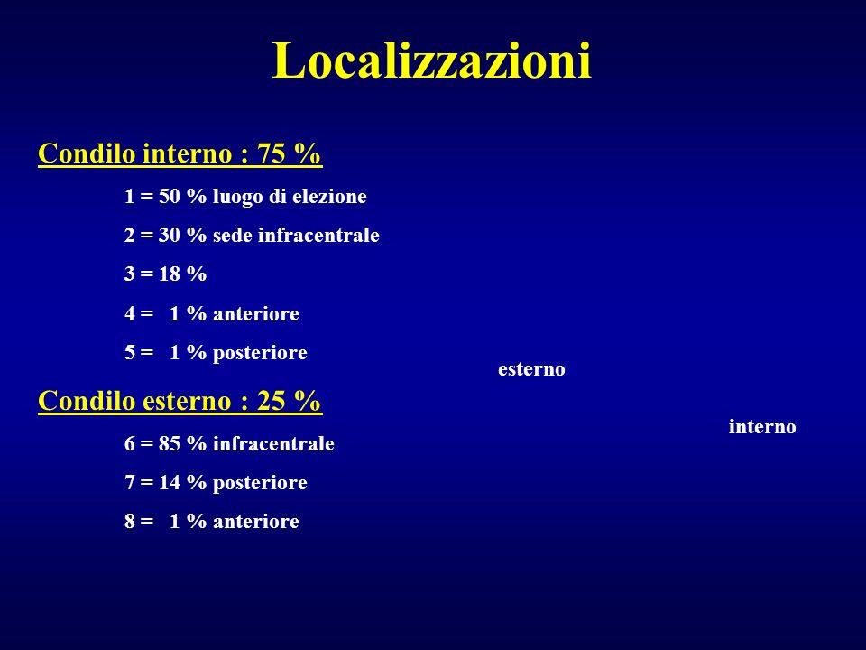 Localizzazioni Condilo interno : 75 % Condilo esterno : 25 %
