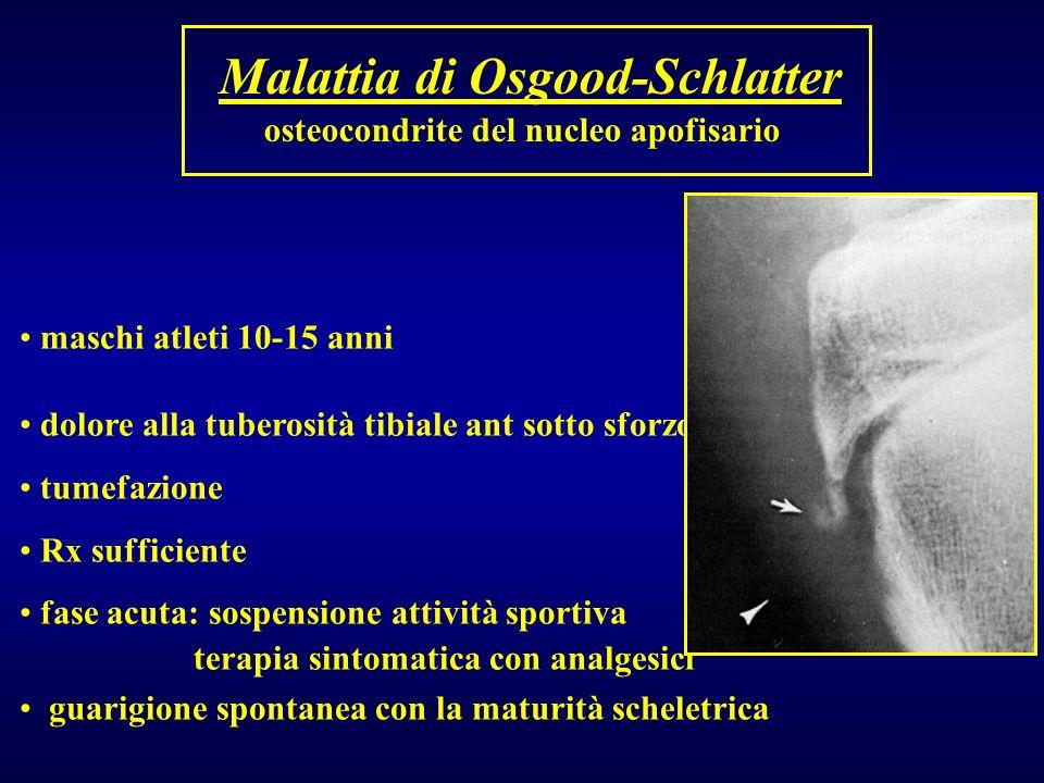 Malattia di Osgood-Schlatter osteocondrite del nucleo apofisario