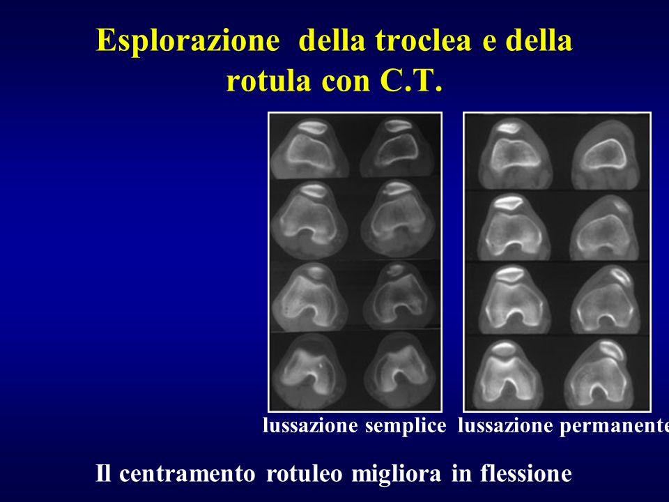 Esplorazione della troclea e della rotula con C.T.