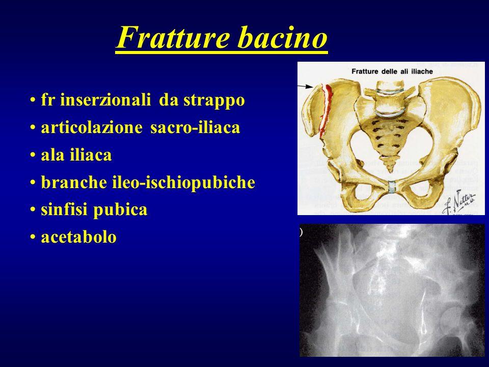 Fratture bacino fr inserzionali da strappo articolazione sacro-iliaca