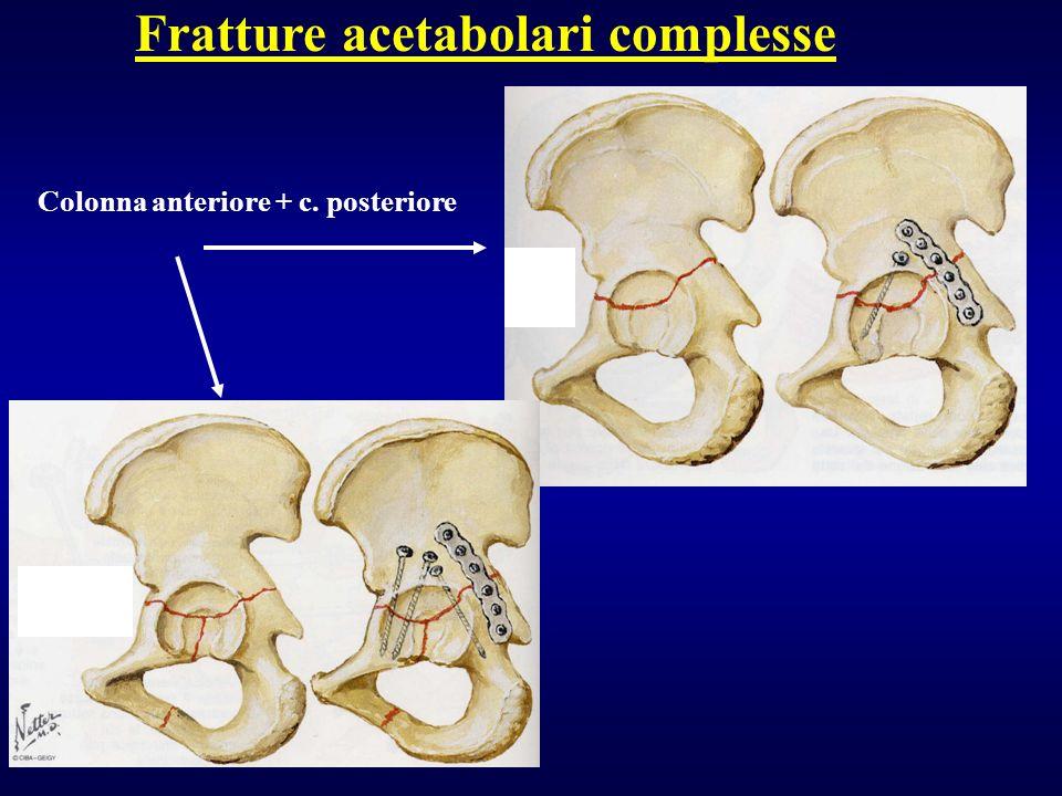 Fratture acetabolari complesse