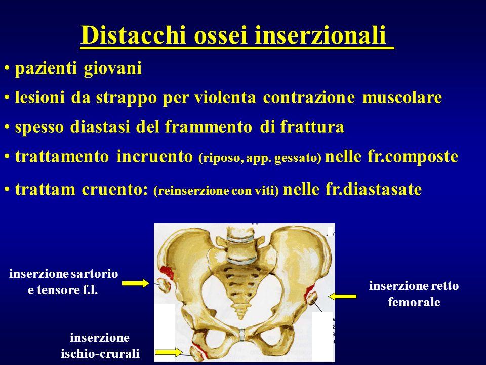Distacchi ossei inserzionali