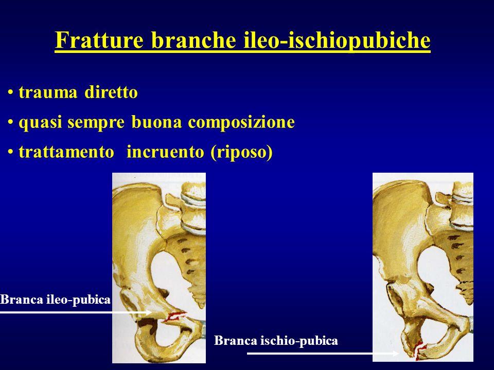 Fratture branche ileo-ischiopubiche