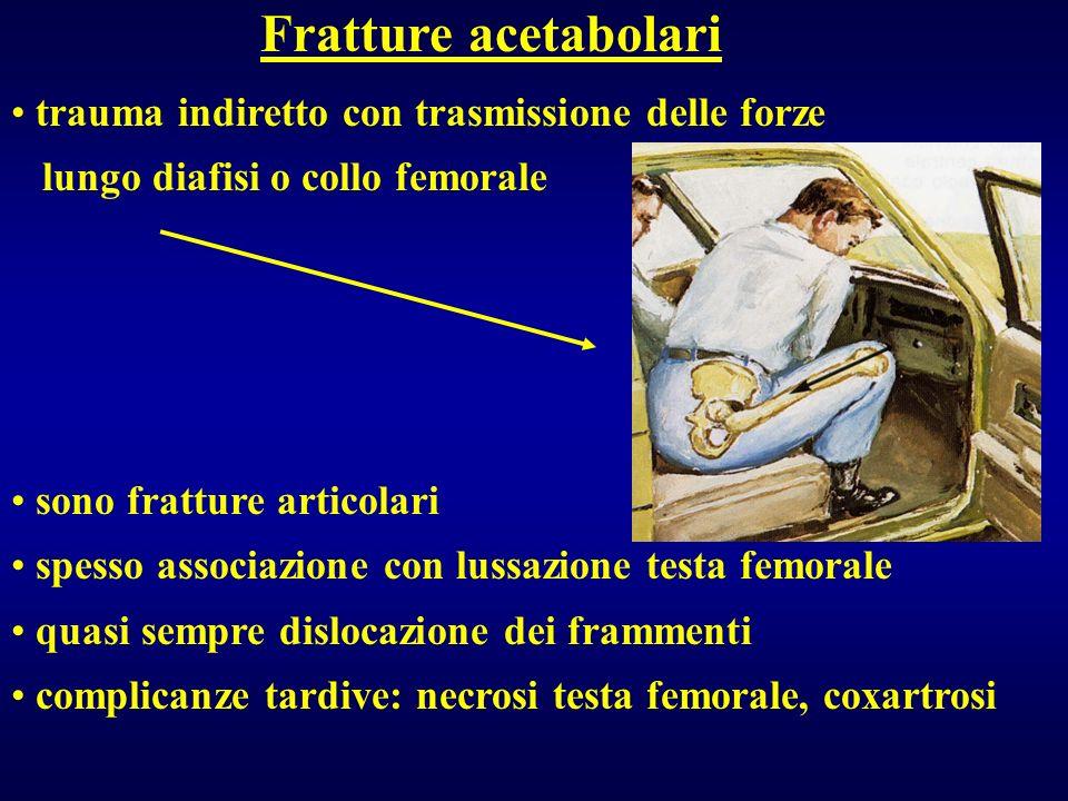 Fratture acetabolari trauma indiretto con trasmissione delle forze