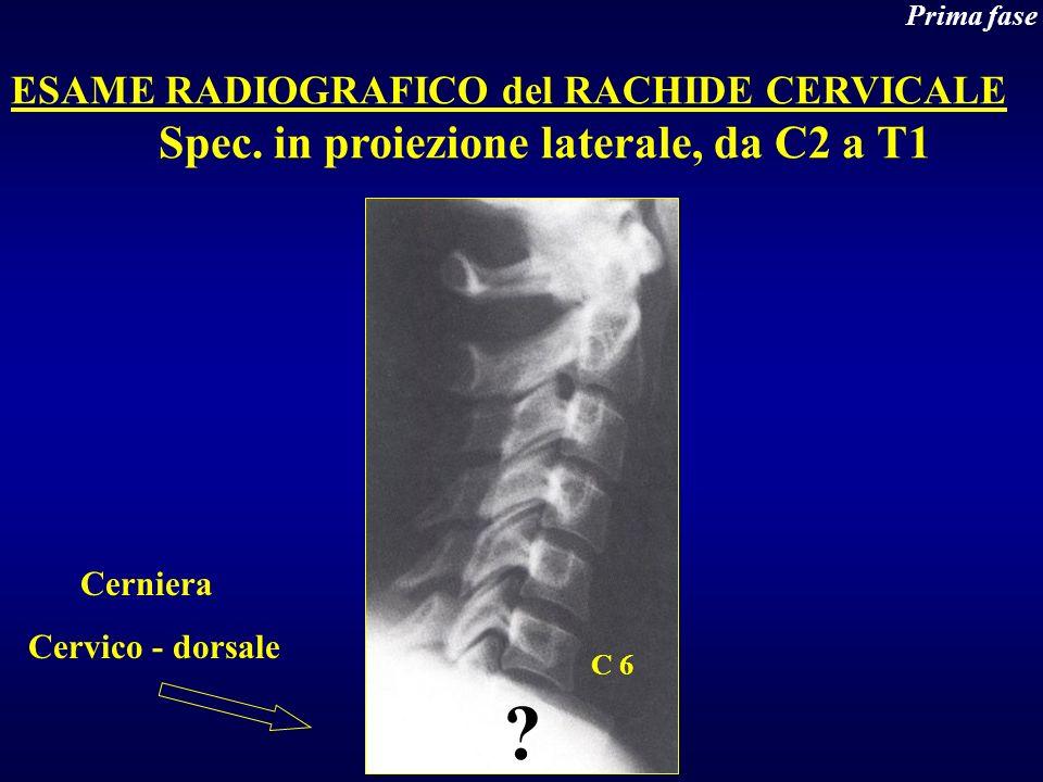 Spec. in proiezione laterale, da C2 a T1