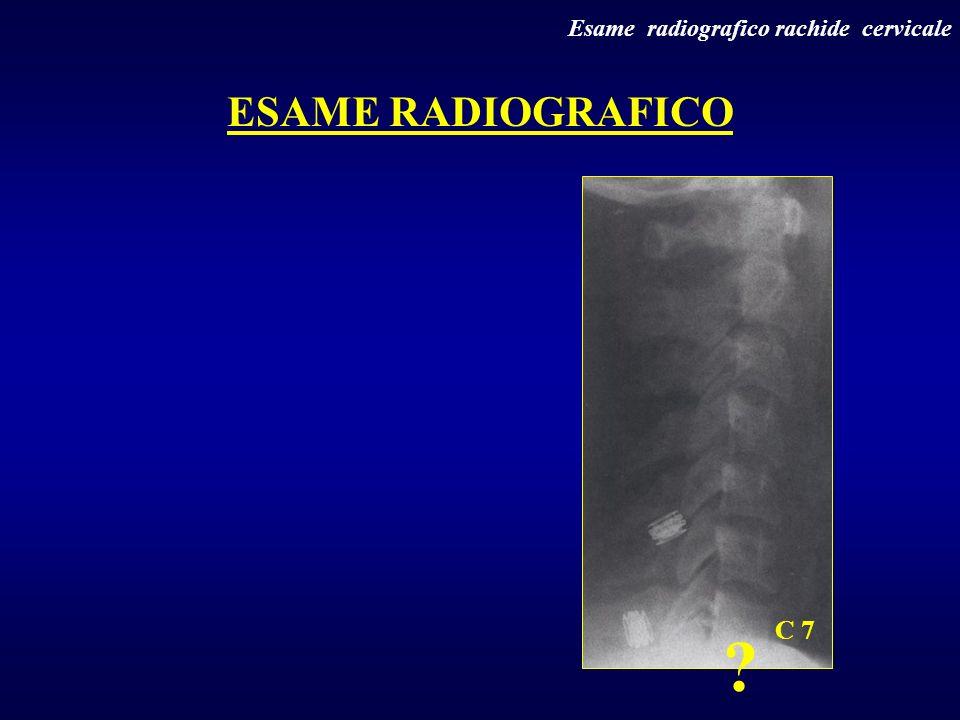 Esame radiografico rachide cervicale