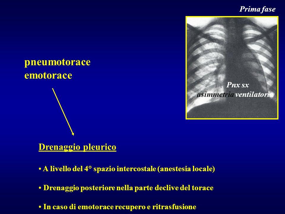 pneumotorace emotorace Drenaggio pleurico Prima fase Pnx sx
