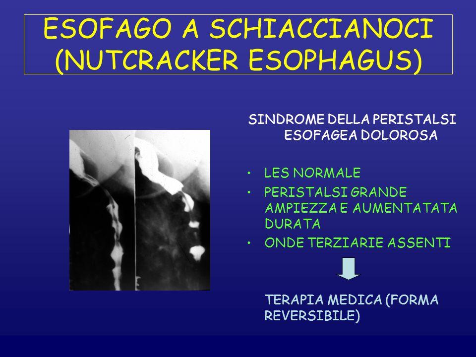 ESOFAGO A SCHIACCIANOCI (NUTCRACKER ESOPHAGUS)