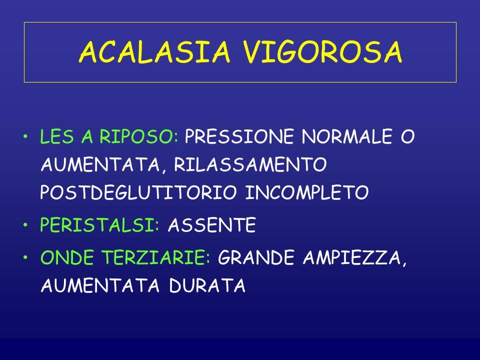 ACALASIA VIGOROSA LES A RIPOSO: PRESSIONE NORMALE O AUMENTATA, RILASSAMENTO POSTDEGLUTITORIO INCOMPLETO.