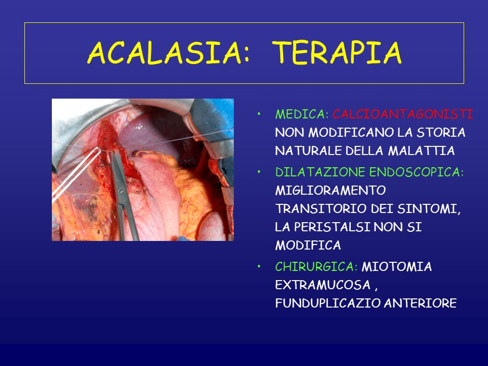 ACALASIA: TERAPIA MEDICA: CALCIOANTAGONISTI NON MODIFICANO LA STORIA NATURALE DELLA MALATTIA.