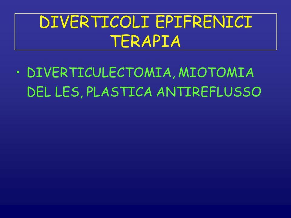 DIVERTICOLI EPIFRENICI TERAPIA