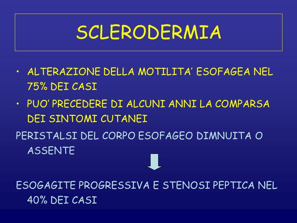 SCLERODERMIA ALTERAZIONE DELLA MOTILITA' ESOFAGEA NEL 75% DEI CASI