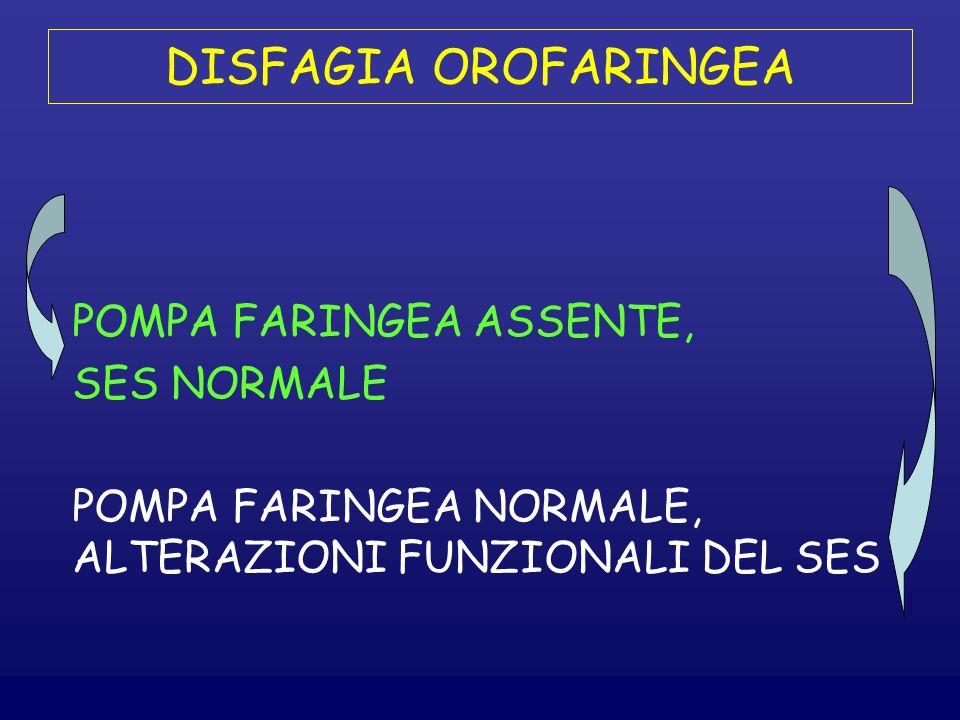DISFAGIA OROFARINGEA POMPA FARINGEA ASSENTE, SES NORMALE
